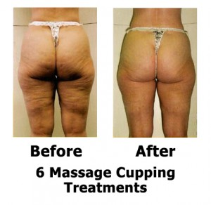 6 treatments out for cellulite